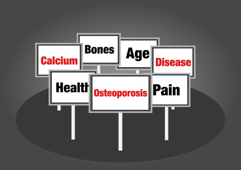 Quiz: Πόσα γνωρίζετε για την οστεοπόρωση; | vita.gr