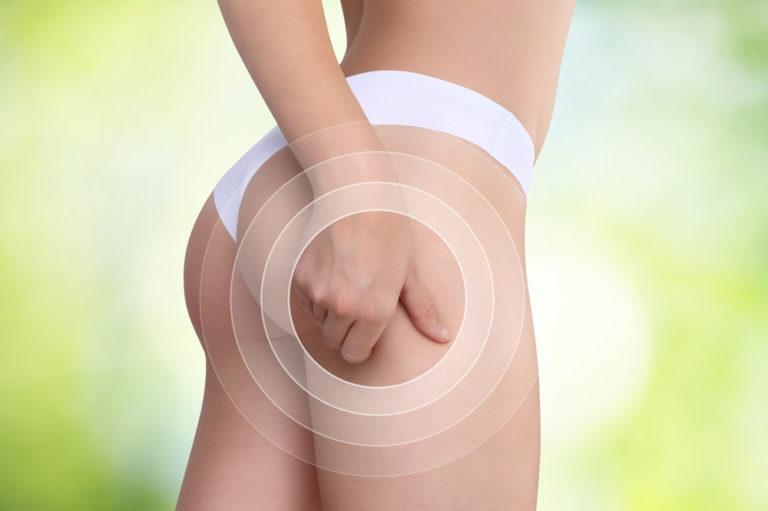 5 (μη επεμβατικοί) τρόποι για την αντιμετώπιση της κυτταρίτιδας | vita.gr