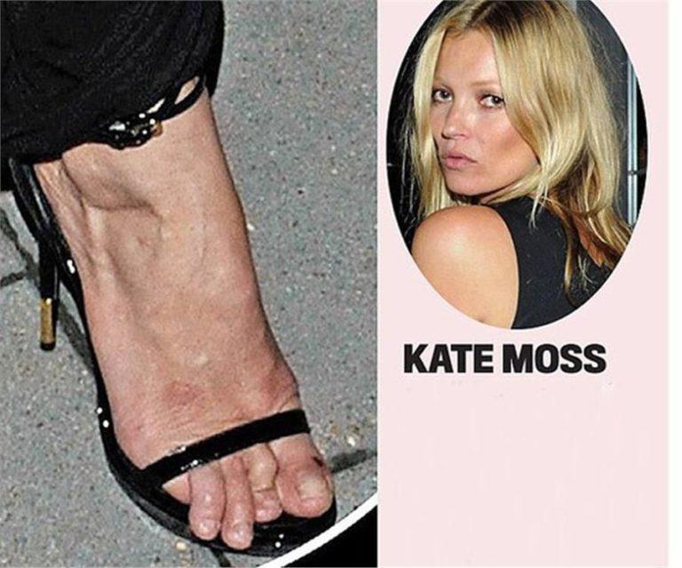 Οι διάσημες με τα πιο άσχημα πόδια! | vita.gr