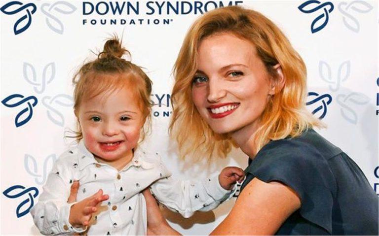 Διάσημο μοντέλο μας συστήνει τον γιο της με σύνδρομο down | vita.gr