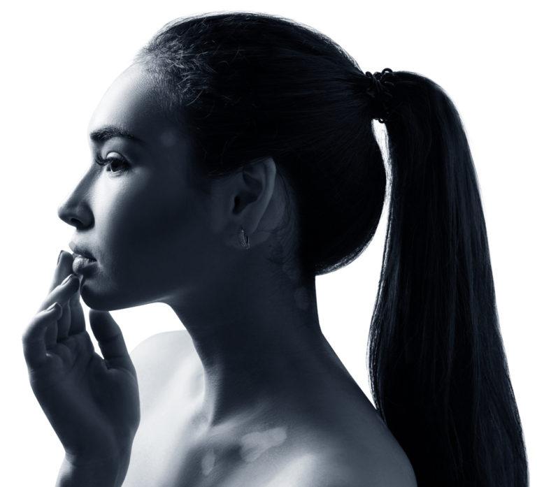 Νέα θεραπεία για τη λεύκη | vita.gr