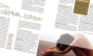 Όταν το δέρμα… ξεβάφει | vita.gr