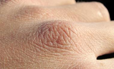 Και το δέρμα μας έχει αυτιά! | vita.gr