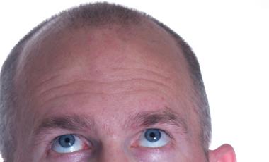 Το τέλος της φαλάκρας; | vita.gr