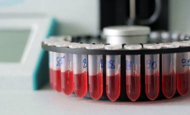 Παράθυρο στο μέλλον: Διάγνωση καρκίνου με τεστ αίματος! | vita.gr
