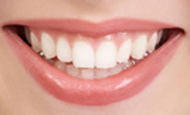 Όχι πολλές ακτινογραφίες  στα δόντια | vita.gr