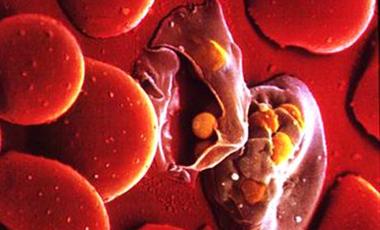 Εμβόλιο κατά της ελονοσίας | vita.gr
