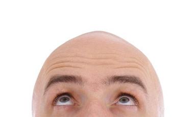 Θεραπεία φαλάκρας με βλαστοκύτταρα | vita.gr