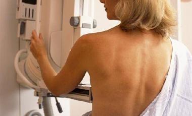 Οι μαστογραφίες σώζουν ζωές | vita.gr