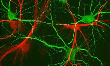 Νευρώνες και αδυνάτισμα | vita.gr