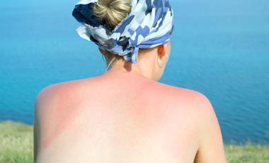Τι να κάνω αν καώ ελαφρά από τον ήλιο; | vita.gr