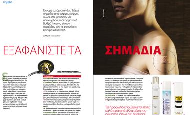 Εξαφανίστε τα σημάδια | vita.gr