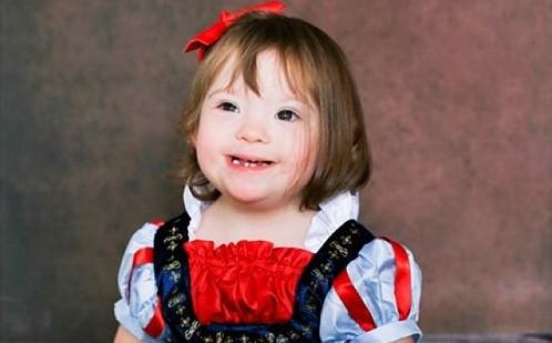 Σύνδρομο Down: Παιδιά ποζάρουν στην πιο παραμυθένια φωτογράφιση | vita.gr