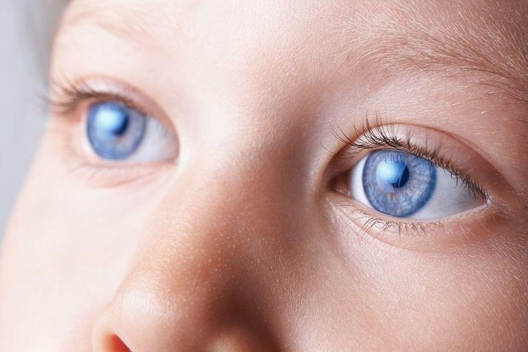 Αλλεργία ή επιπεφυκίτιδα: Τι σημαίνουν τα κόκκινα ματάκια του παιδιού | vita.gr