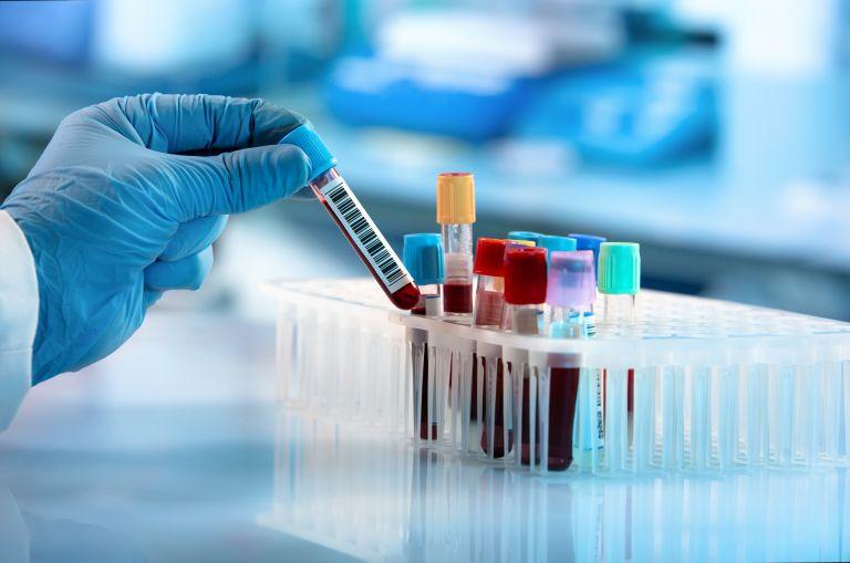 Ουρικό οξύ: Πώς επιδρά στο προσδόκιμο ζωής; | vita.gr