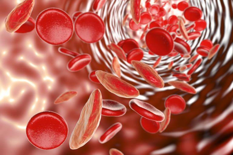 Δύο νέες γονιδιακές θεραπείες διορθώνουν κληρονομικές μορφές αναιμίας | vita.gr