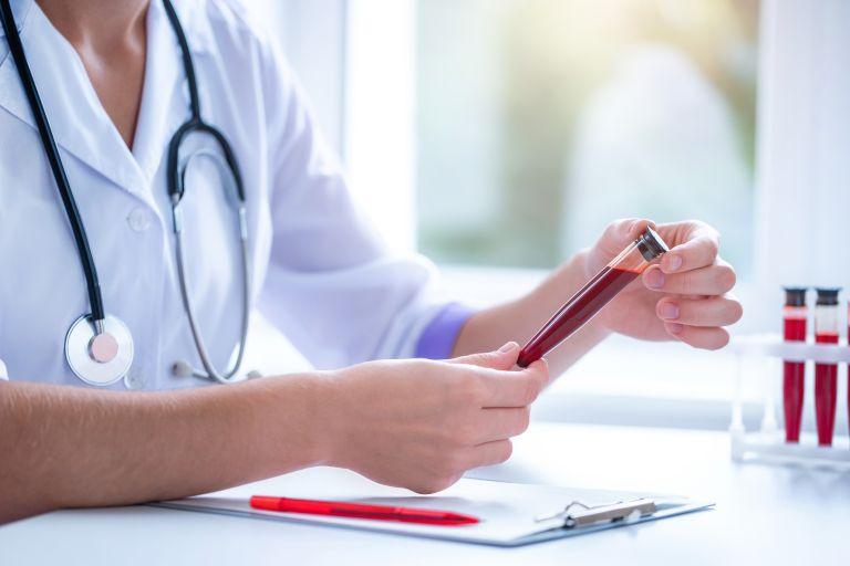 Θρομβώσεις: Ποια ομάδα αίματος αντιμετωπίζει υψηλότερο κίνδυνο; | vita.gr