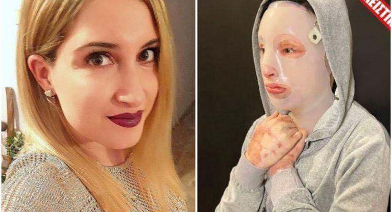 Επίθεση με βιτριόλι: Μετά το όγδοο χειρουργείο, η Ιωάννα δείχνει τα εγκαύματα στο χέρι της | vita.gr