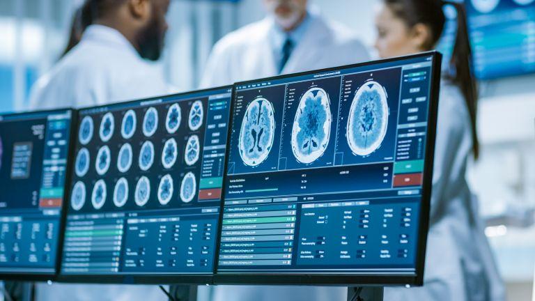 Πρωτοποριακή RNA θεραπεία για καρκίνους του εγκεφάλου   vita.gr