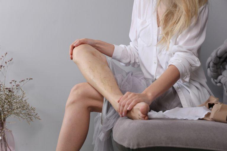 Κιρσοί και ευραγγείες στα πόδια – Έντονες φλέβες στα χέρια | vita.gr