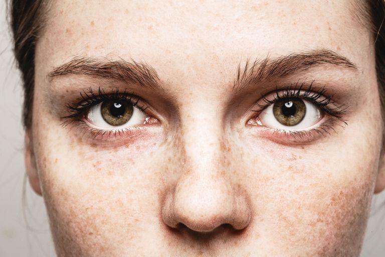 6 πράγματα που τα μάτια μας μπορούν να πουν για την υγεία μας | vita.gr